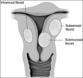 uterine fibroid treatment in Memphis