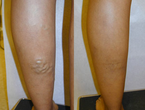 Varicose vein treatment in Memphis