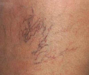 spider vein  treatment in Memphis