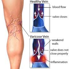 venas varicosas - Memphis vasculares